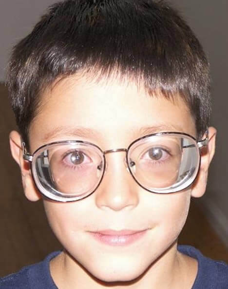 Las personas con miopía alta son obligadas a usar gafas de espesor elevado para corregir su problema de visión
