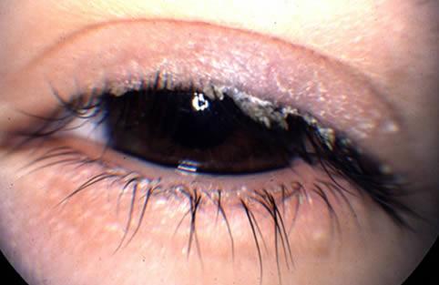 En la blefaritis las pestañas acumulan secreciones y esto evita el buen funcionamiento de la lagrima podiendo provocar baja de visión.