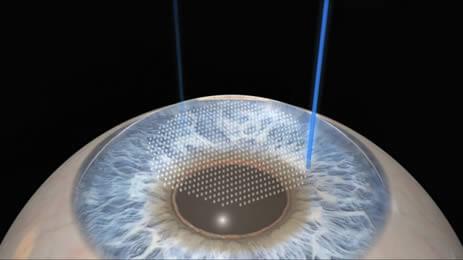 La cirugía con laser para la hipermetropía se realiza en la córnea para modificarla de tamaño y crear una lente ideal para corregir el grado del paciente.