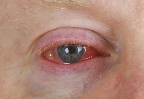 La conjuntivitis es la causa más frecuente de ojo rojo, la inflamación de la conjuntiva puede llevarnos a baja de la visón.