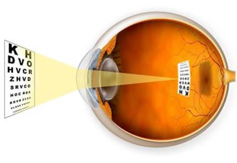 Las personas con miopía no consiguen focar la imagen en la retina, en su lugar la imagen es focada antes de ella y por eso se percibe borrosa.