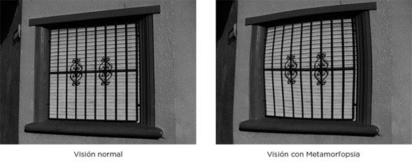 En la imagen observamos como seria nuestra visión al tener una metamorfopsia.