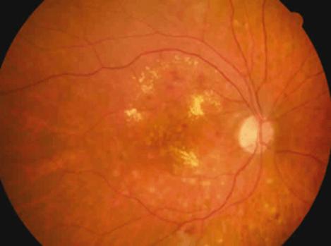 La inflamación del centro de la retina causado por la diabetes puede ocasionar visión con metamorfopsias.