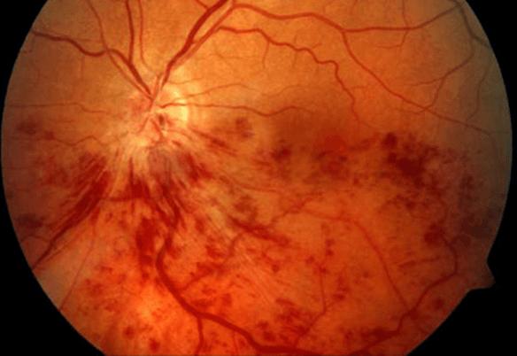 En los infartos de la retina, la mácula también puede presentar inflamación y causar metamorfopsias