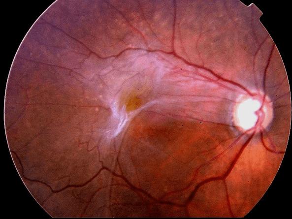 Las membranas que están encima de la retina pueden causar una visión distorsionada.