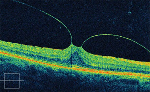 En la imagen observamos una tomografía de coherencia óptica mostrando una tracción vítrea jalando la retina que puede causar una visión con metamorfopsias.