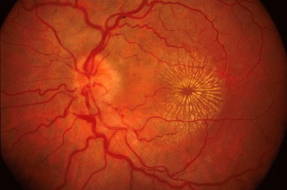 Las infecciones o procesos autoinmunes que afectan el fondo de ojo pueden cursar con metamorfopsias.