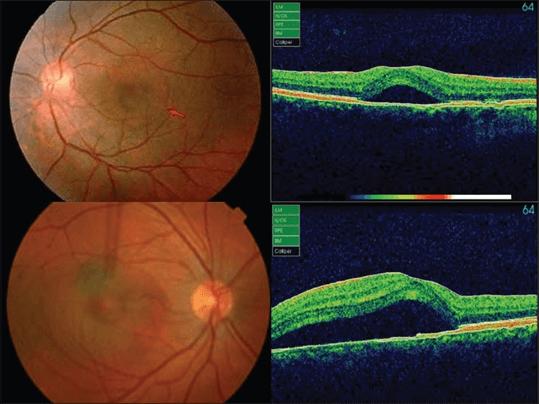 En la imagen observamos un ojo con un desprendimiento seroso de la retina confirmado por tomografía, característico de la Coroidopatia Serosa Central que causa metamorfopsias.