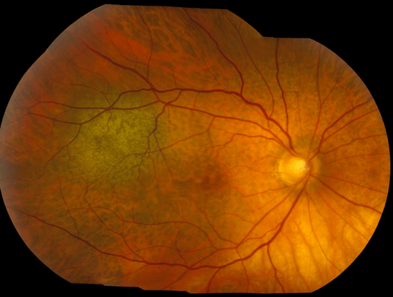 En la imagen podemos observar un Nevo pigmentado de coroides en la región macular, en algunas ocasiones puede dar metamorfopsias.