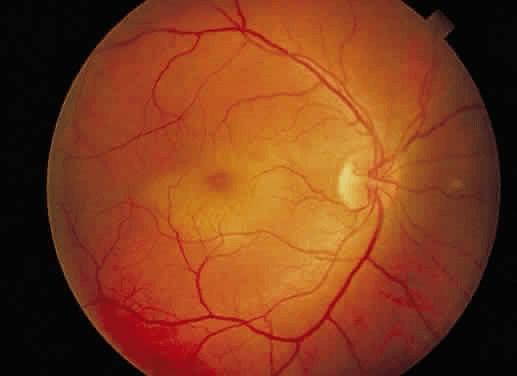 En los traumas contusos severos del globo ocular la mácula puede inflamarse y ocasionar una visión distorsionada.