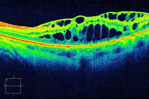En algunas cirugías de catarata complicadas la mácula pude sufrir un proceso inflamatorio severo llamado de edema macular quístico que puede causar metamorfopsias.