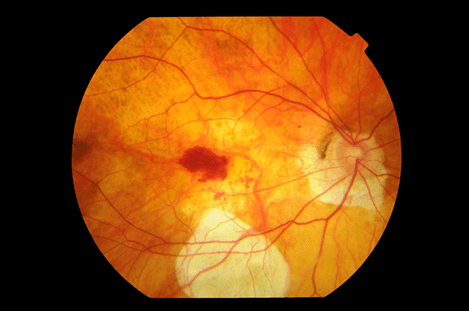 En la imagen observamos una degeneración macular por alta miopía que puede cursar con metamorfopsias.