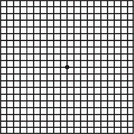 Examen fácil y rápido para detectar anormalidades en la mácula todas las líneas deben ser rectas.