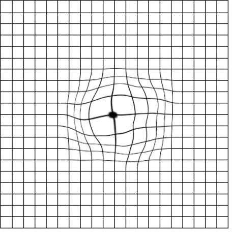 En la imagen observamos una rejilla de Amsler con líneas curvas en su centro.