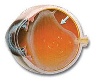En la imagen observamos como se separa el vítreo de la retina ocasionando las miodesopsias.