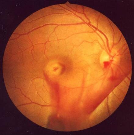 Las hemorragias en el vítreo pueden ser causadas por muchos factores, uno de los síntomas son las miodesopsias.