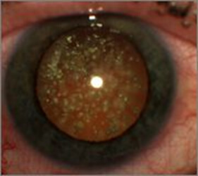 En la imagen observamos cristales de colesterol dentro del ojo en el humor vítreo, que pueden causar miodesopsias.