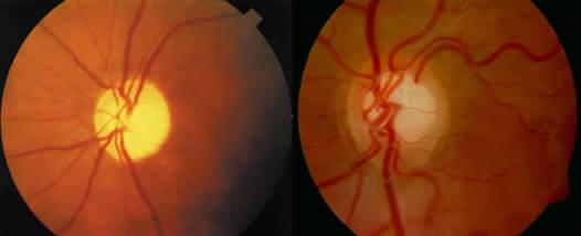 En la imagen observamos a la izquierda un disco óptico normal y a la derecha uno con daños permanentes por Glaucoma.