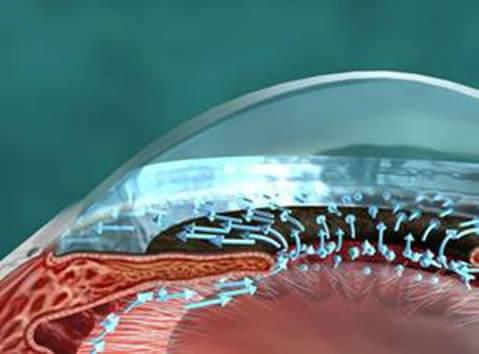 El líquido producido atrás del cristalino por el cuerpo ciliar pasa a través de la pupila para ser drenado en el trabeculado.