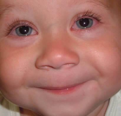 La conjuntivitis alérgica es más frecuente en niños y tiene a empeorar durante el verano.