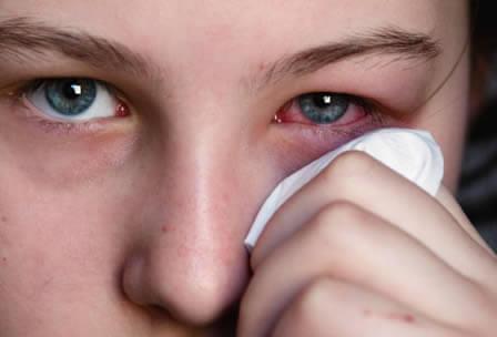 La conjuntivitis viral generalmente afecta un ojo primero y luego se vuelve bilateral, es altamente contagiosa.