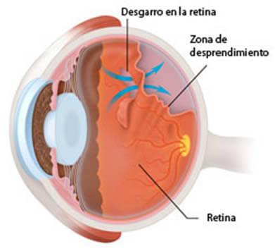 Cuando existe un desgarro de la retina, si no es tratado puede llevar a un desprendimiento de retina.