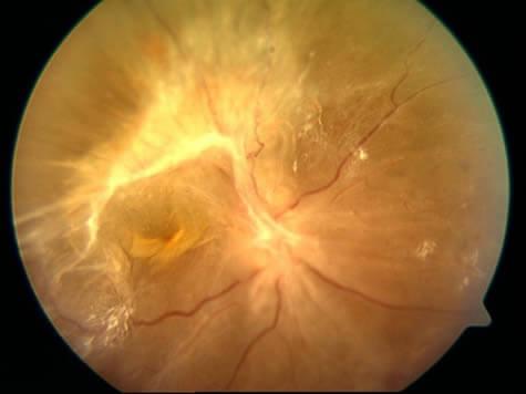 La retinopatía diabética puede cursar con desprendimiento de retina por tracción.
