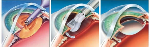 La cirugía de catarata por facoemulsificación continua siendo la técnica más usada en el mundo para la cirugía de catarata.