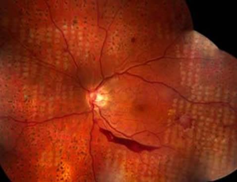 El tratamiento ideal para la retinopatía diabética es la fotocoagulación laser de la retina