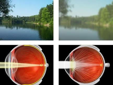 La visión en los pacientes con catarata se ve bastante perjudicada en etapas avanzadas llegando a ceguera reversible con cirugía.