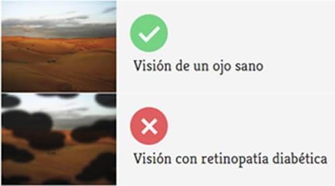 El paciente con retinopatía diabética puede tener este tipo de visión en etapas avanzadas de la enfermedad.