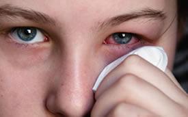 ojo rojo-oftalmologo doctor francisco dacarett honduras hospital santa lucia oftalmologia retina clinica y quirurgica