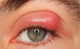 orzuelo-oftalmologo doctor francisco dacarett honduras hospital santa lucia oftalmologia retina clinica y quirurgica