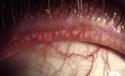 En la Blefaritis Posterior observamos una obstrucción de las glándulas de los parpados llamadas glándulas de Meibomio.