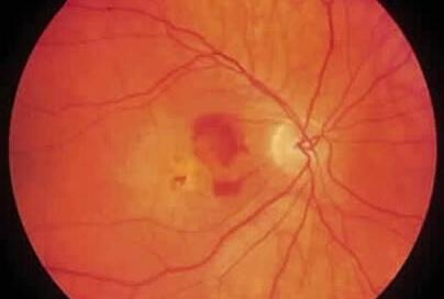 En la DMRE húmeda podemos observar hemorragias del fondo de ojo.