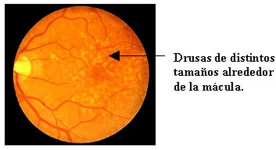 Las lesiones amarillas en la retina son llamadas de drusas y son la etapa inicial de la degeneración macular relacionada con la edad.