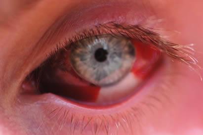 La hemorragia subconjuntival entre sus causas encontramos la presión arterial no controlada.