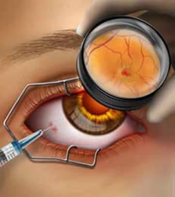 El tratamiento de avanzada para la DMRE es la aplicación de medicamentos dentro del ojo.