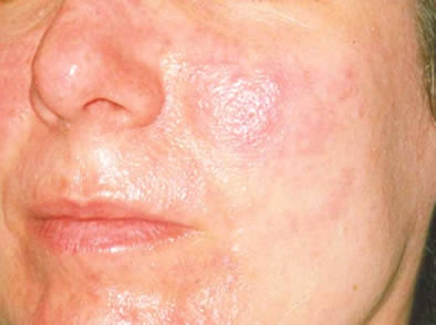 Personas con Acné rosácea son más propensas a padecer de blefaritis.