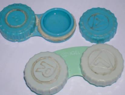 Un estuche de lentes de contacto sucio es una de las principales causas de infección.