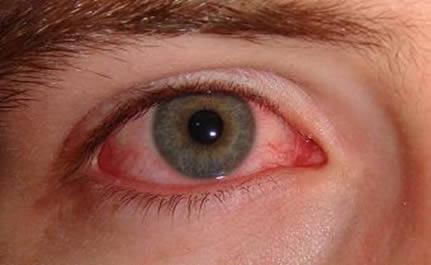 Al tener ojo rojo, es mejor evitar el uso del Lente de Contacto y visitar su oftalmólogo.