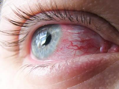 El ojo rojo así como la comezón en el ojo son los síntomas más frecuentes de alergia ocular.