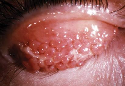 Uno de las señales diagnósticas características de alergia ocular es la reacción papilar de la conjuntiva.