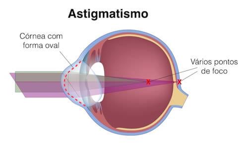 En el astigmatismo tenemos varios puntos de foco en la retina por lo que no se ve bien ni de lejos ni de cerca.