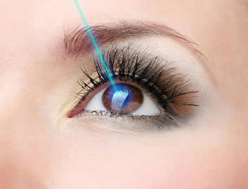La cirugía de LASIK para corregir el grado puede ser un tratamiento efectivo para el astigmatismo.