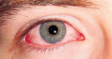 El uso inadecuado de maquillaje puede causar ojo rojo entre otras enfermedades del oculares.