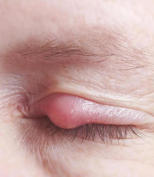 Orzuelo-vision borrosa-oftalmologo doctor francisco dacarett honduras hospital santa lucia oftalmologia retina clinica y quirurgica