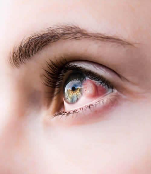 Pinguécula-vision borrosa-oftalmologo doctor francisco dacarett honduras hospital santa lucia oftalmologia retina clinica y quirurgica