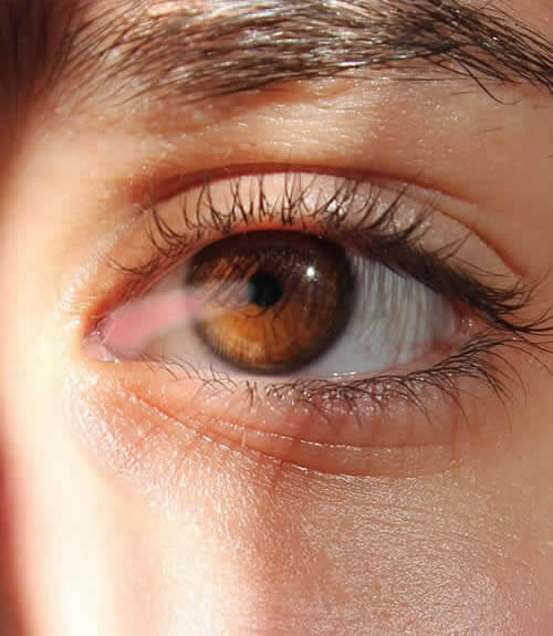 Pterigión-vision borrosa-oftalmologo doctor francisco dacarett honduras hospital santa lucia oftalmologia retina clinica y quirurgica