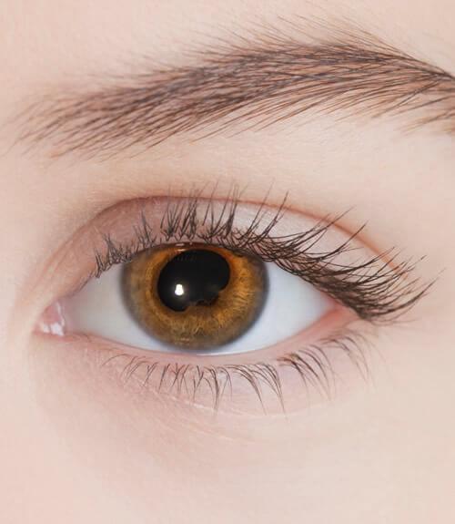 Uveitis-vision borrosa-oftalmologo doctor francisco dacarett honduras hospital santa lucia oftalmologia retina clinica y quirurgica
